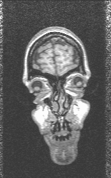 [Front view of human MRI slice]