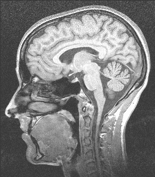 [Side view of human MRI slice]